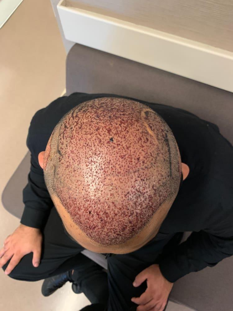 Aufnahme vom Oberkopf eines männlichen Patienten nach der Haartransplantation zu Corona Zeiten