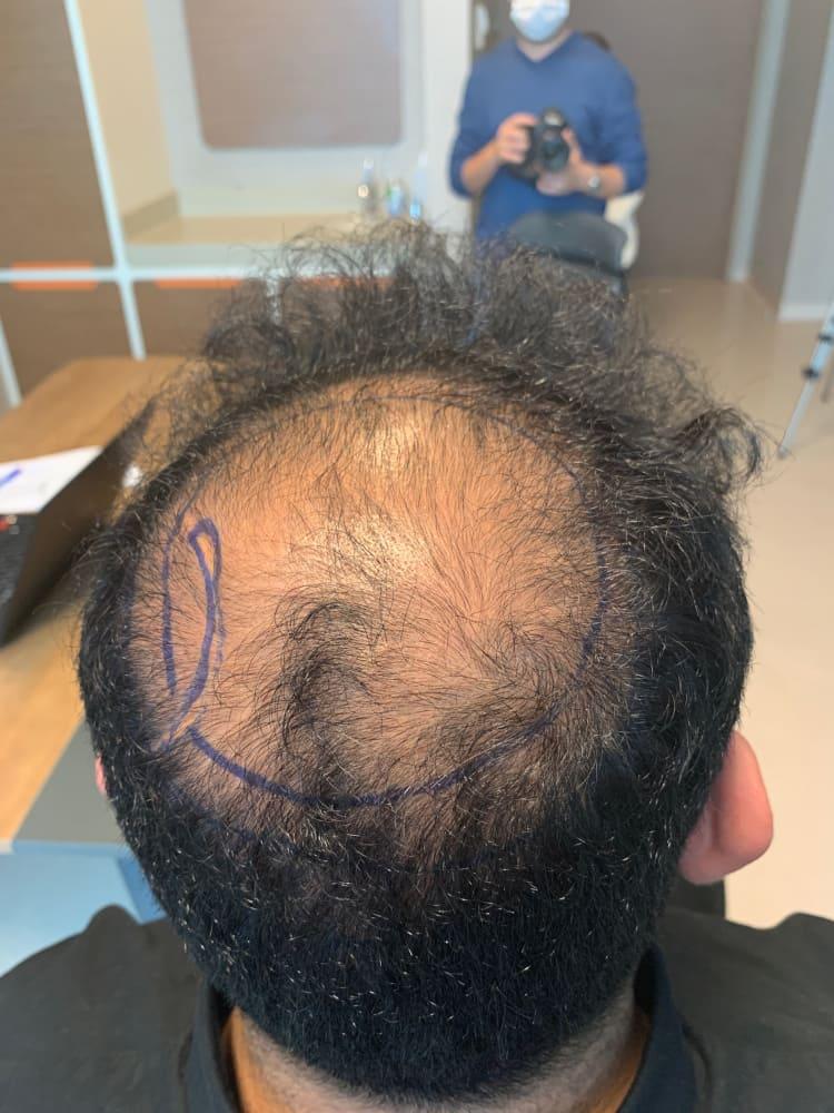 Nahaufnahme vom Spenderbereich während der Haartransplantation in der Türkei während Corona