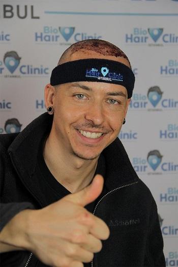 A successfull Hair Transplant in turkey