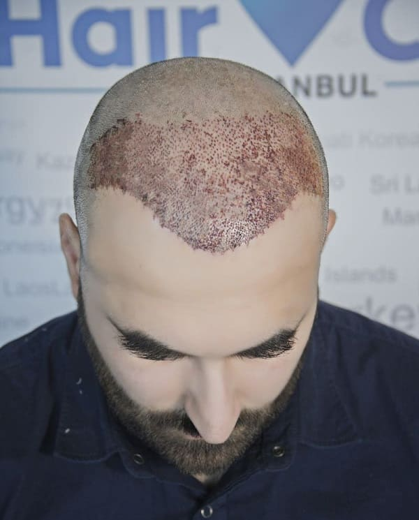 Scalp after a FUE hair transplant