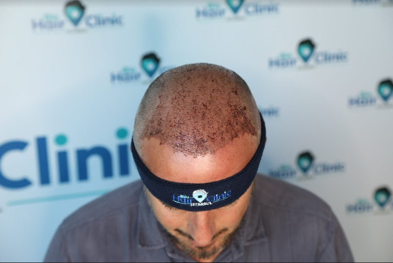 Removing scabs after a hair transplant