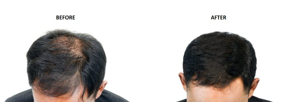 before an after a hair transplant