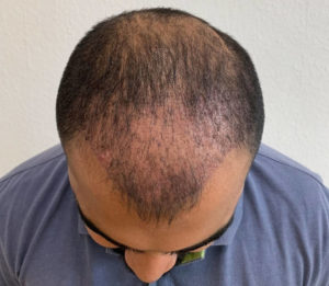 hair returning after a hair transplant