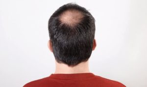 how to treat a circulair hair loss with Bio Hair Clinic