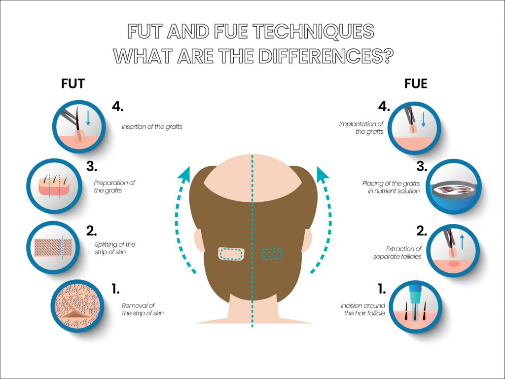 FUT and FUE hair transplant methods