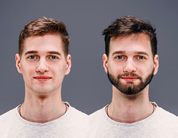 A comparision picture of a before and after beard transplant