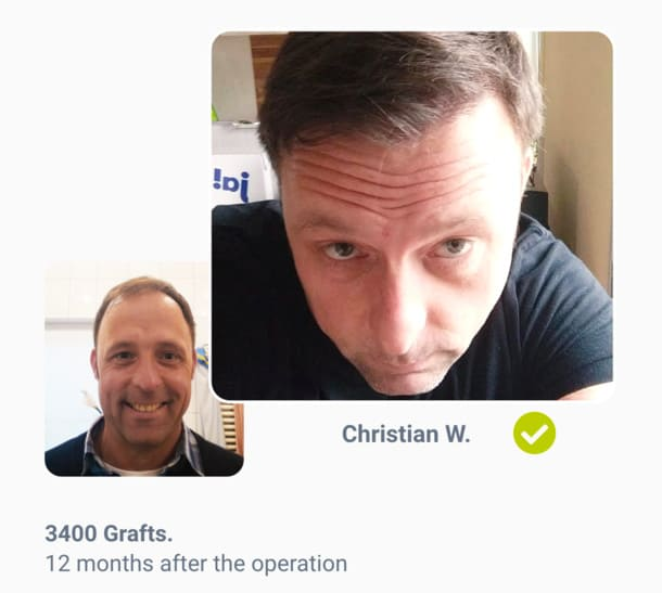Patient Christian Before the hair transplant after comparison