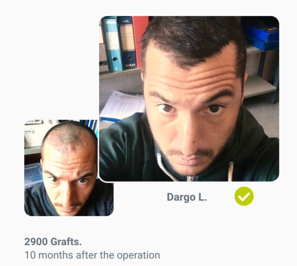 Patient Dargo in hair transplant before after comparison