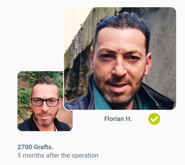 Patient Florian Before the hair transplant after comparison