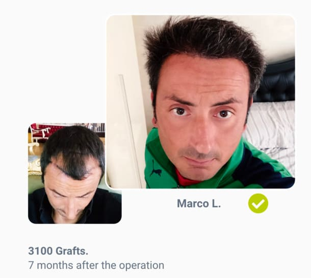Patient Marco Before the hair transplant after comparison