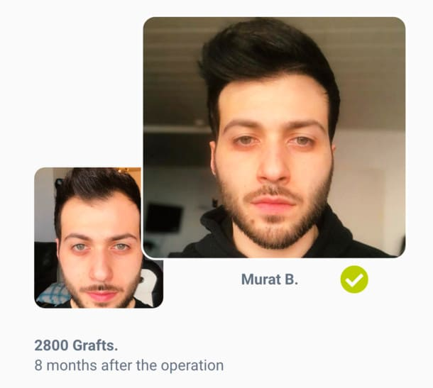 Patient Murat in hair transplant before after comparison