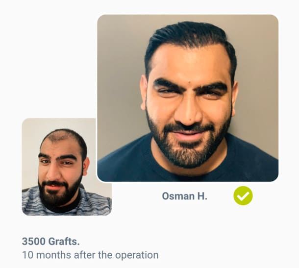 Patient Osman Before the hair transplant after comparison