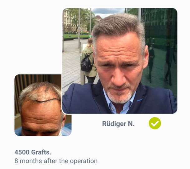 Patient Rüdiger in hair transplant before after comparison
