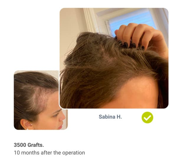 Patient Sabina Before the hair transplant after comparison