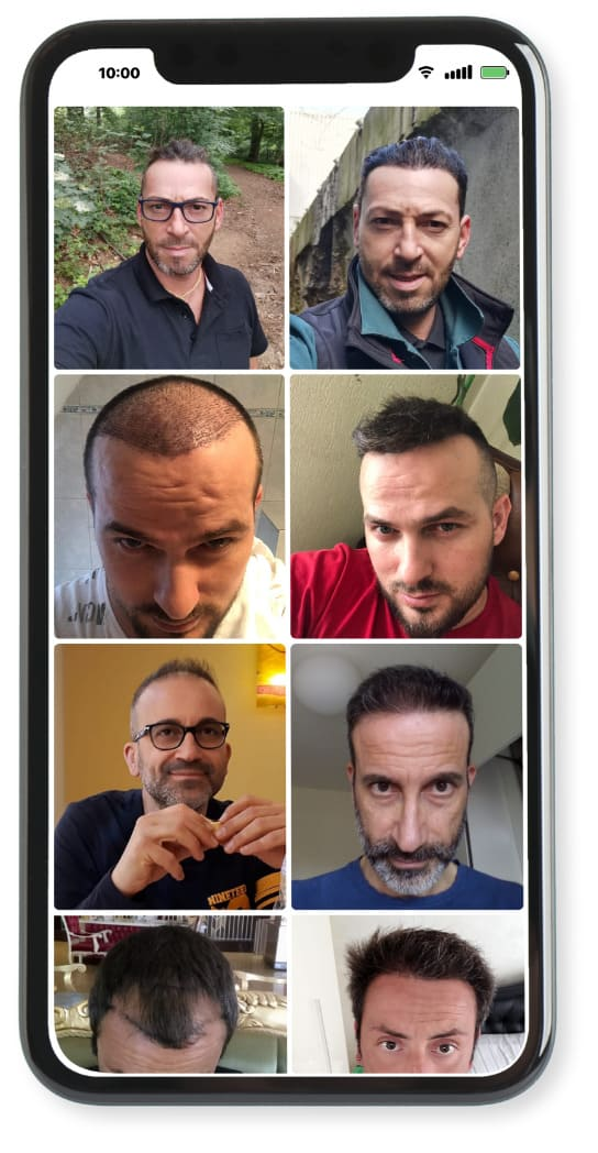 Before After images of an hair transplant