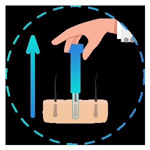 Extracción de injertos - Trasplante Capilar DHI