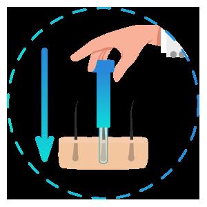 Implante de injertos - Trasplante Capilar DHI