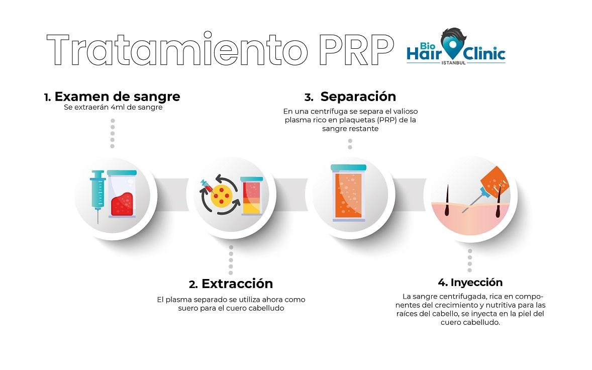 Procedimiento del tratamiento PRP