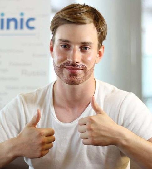 Paciente de Trasplante de barba