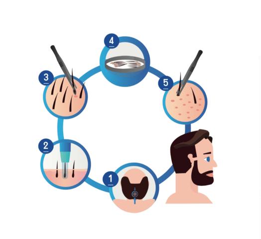 Saphir FUE Haartransplantation - Forschung im Sinne des Patienten