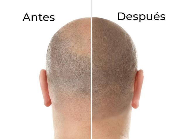 Antes y Después - Pigmentación Capilar