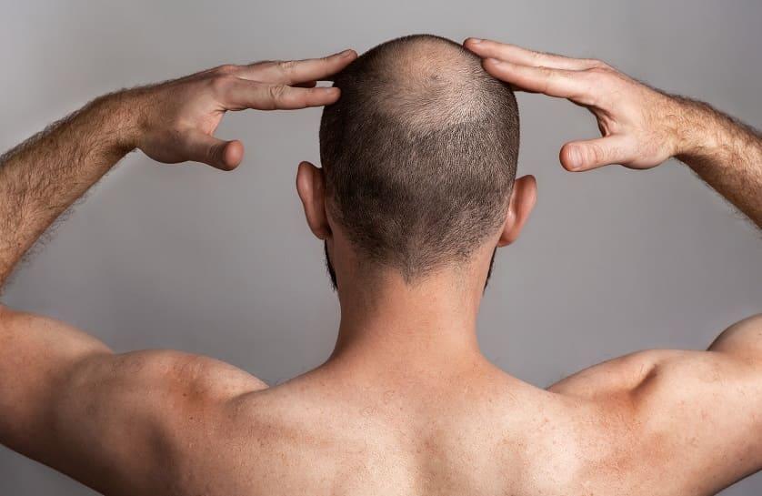 ¿Combatir la calvicie con finasteride?