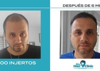 Antes y depués del injerto capilar - 4000 injertos