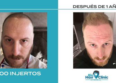 Antes y depués del injerto capilar - 3500 injertos
