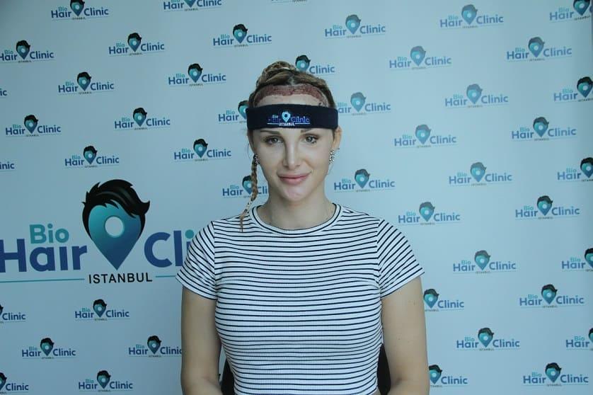 Mujer tras trasplante capilar sin rasurar completamente
