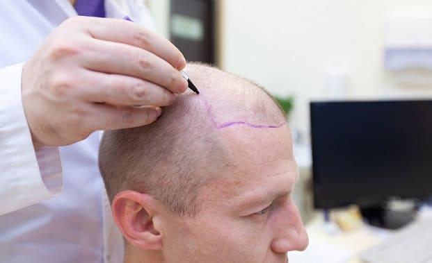 Tratamientos capilares contra alopecia