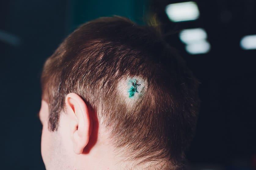 Cicatrices en la cabeza
