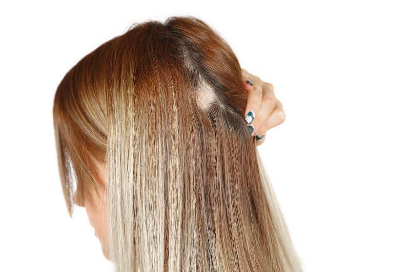Alopecia femenino