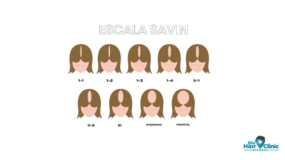 Escala de alopecia en mujeres: Savin, avance de la escala de Ludwig