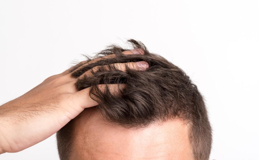 Hombre con caída de cabello tocando su melena