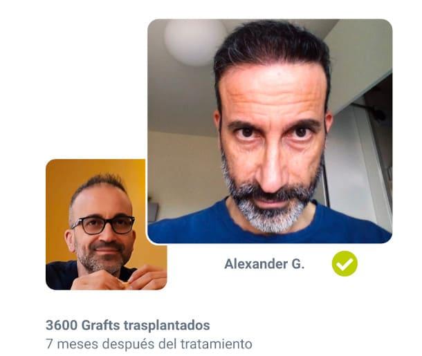 Alexander paciente Anteriormente en trasplante de cabello después de la comparación