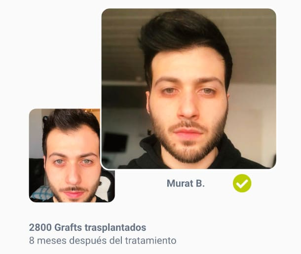 Murat paciente en el trasplante de cabello antes de después de la comparación