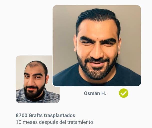 Osman paciente Antes del trasplante de cabello después de la comparación