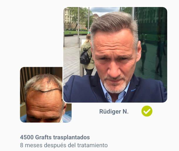 Rüdiger en el paciente de trasplante de cabello antes de después de la comparación