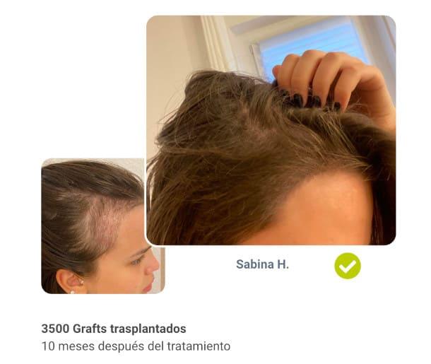 Sabina paciente Antes del trasplante de cabello después de la comparación