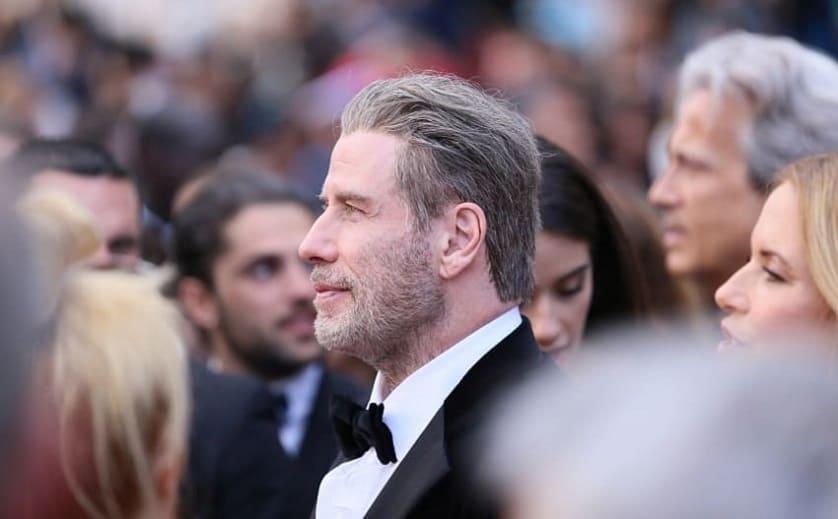 Trapianto capelli vip Travolta