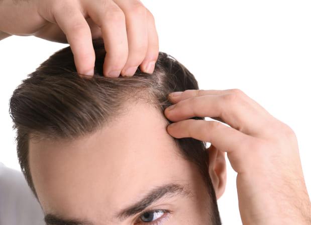 coprire cicatrice trapianto capelli l´attaccatura dei capelli