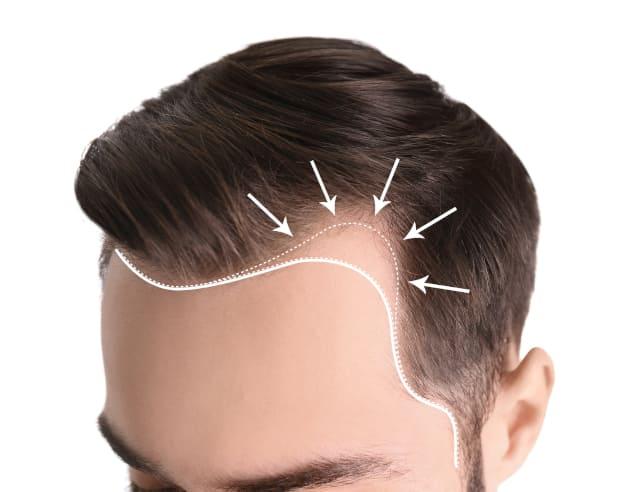 coprire cicatrice trapianto capelli la corretta attaccatura