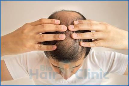 alopecia areata cause sintomi e soluzioni