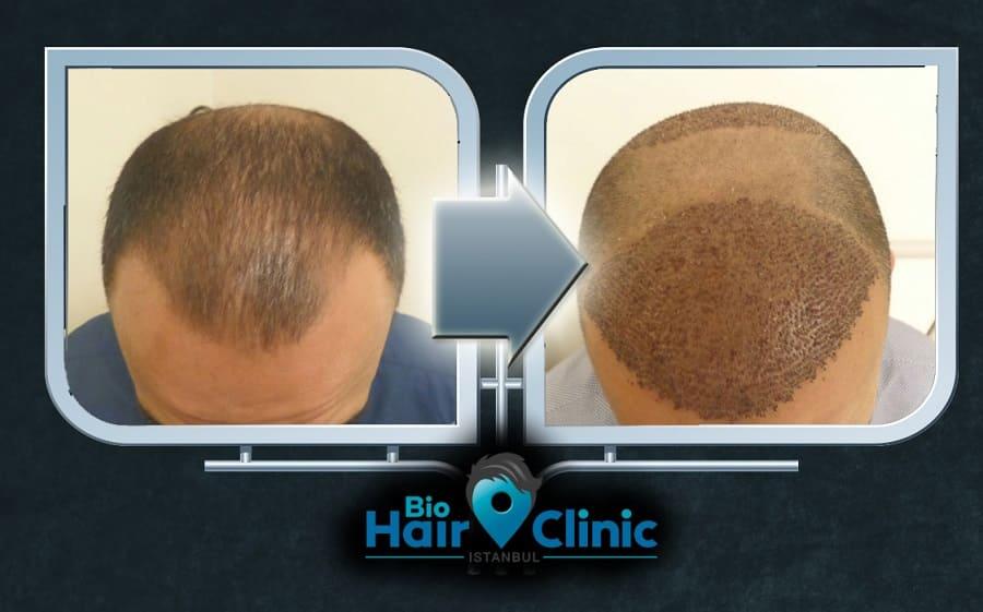 Haartransplantation Türkei vorher nachher - Die BioHairClinic