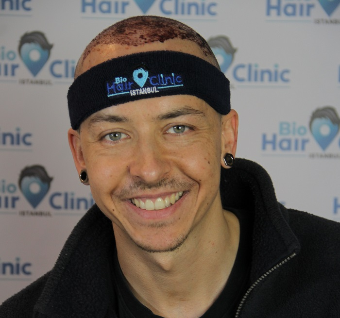 Haartransplantation Türkei vorher nachher - Istanbul Erfahrungen