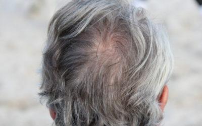 Die ersten Anzeichen für Haarausfall erkennen