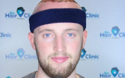 Haartransplantation Türkei Testsieger – Kliniken im Test