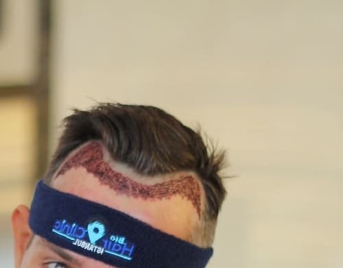 Haartransplantation ohne Rasur - Unshaven Haartransplantation