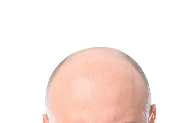 Haartransplantation ohne Rasur - keine Voraussetzung
