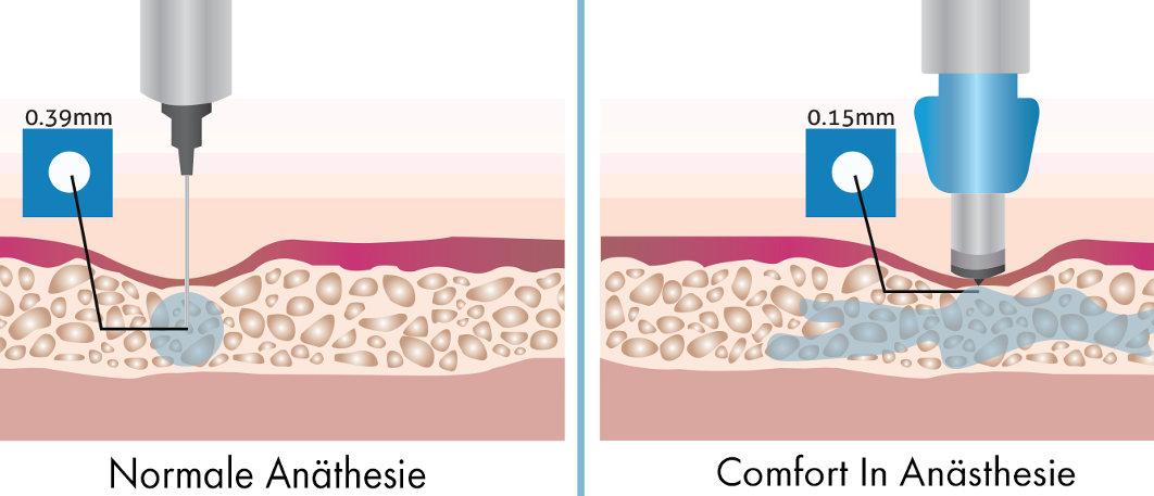 Bio Barthaartransplantation